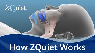 Want to Stop Snoring? Learn How ZQuiet Anti Snoring Mouthpieces Work
