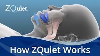 How ZQuiet Works