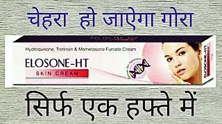 Elosone HT Cream Review, Side Effects, Uses|Best Fairness Cream For Marks