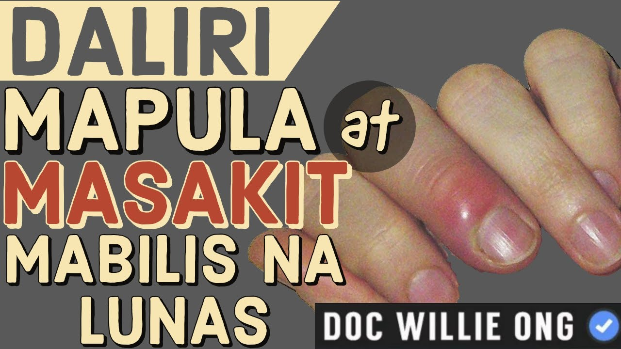 Daliri Mapula at Masakit: Mabilis na Lunas - by Doc Willie Ong #1046