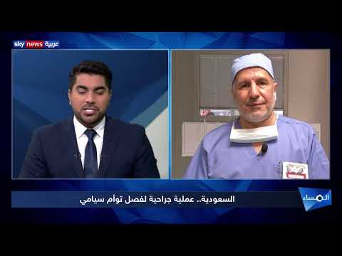 السعودية.. عملية جراحية لفصل توأم سيامي  - نشر قبل 2 ساعة