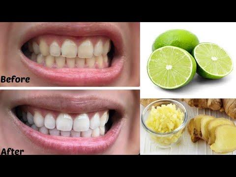 Colgate Teeth Whitening Gel My Los Feliz Beauty Blog