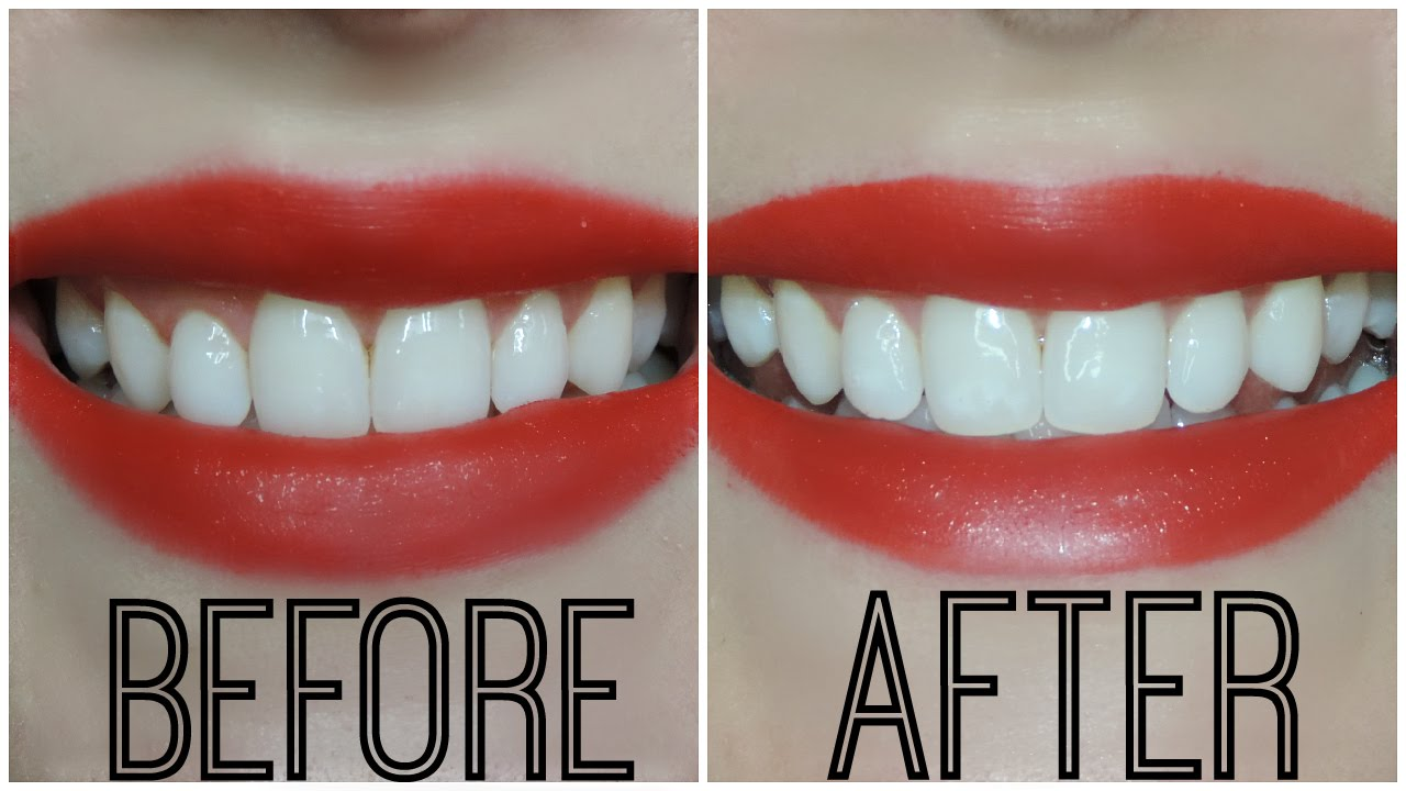 Crest 3d White Whitestrips Luxe Supreme Flexfit Results Winners