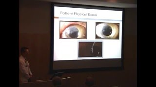 Corneal Scar Etiology and Management
