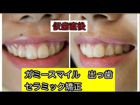 前歯2本が大きくガミースマイルで写真撮影で笑う事に抵抗がありました