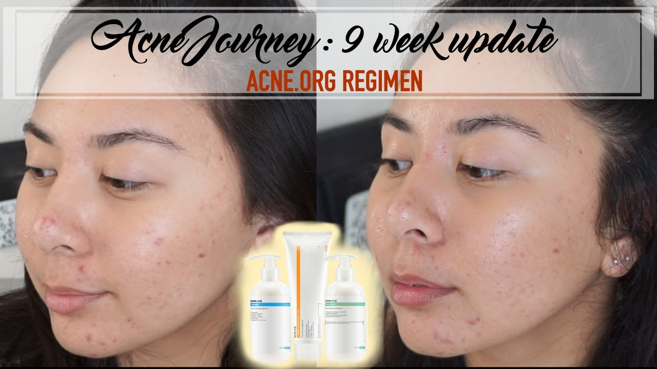 glycolic acid acne