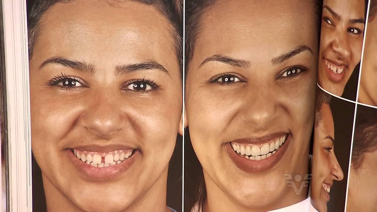Rose Marques fala sobre lentes de contato dental no Viver Bem - TV Tribuna    27 02 2016 - YouTube d22cc2b474