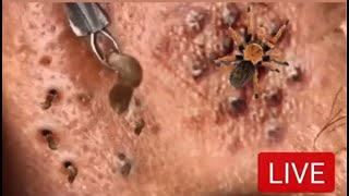 47 Big Blackheads, Cysts, Pimples and Whitehead Pops! Acne, Zits & Popping