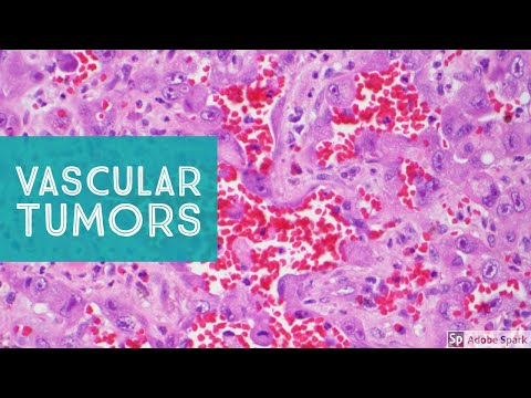 Vascular Tumors of the Skin - Explained by a Soft Tissue Pathologist