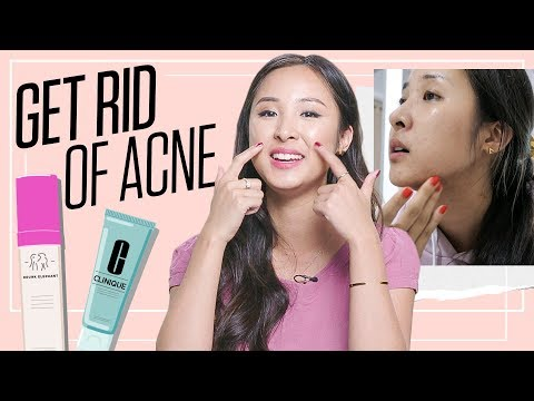 How to Remove Pimples Fast and Get Clear Skin | Acne Tips