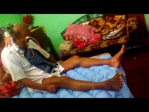 CJD  DISEASE VIDEO 1