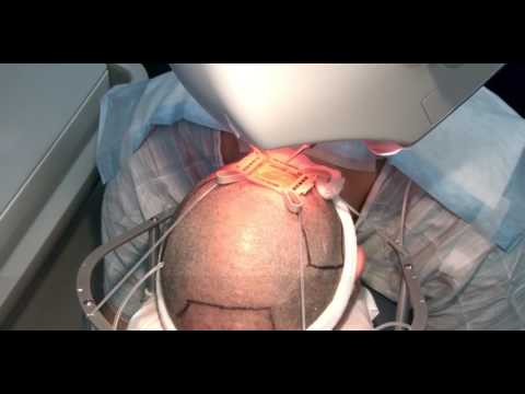 How it works? ARTAS Robotic Hair Restoration in Maxim Medica