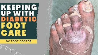 Keeping Up With Diabetic Foot Care