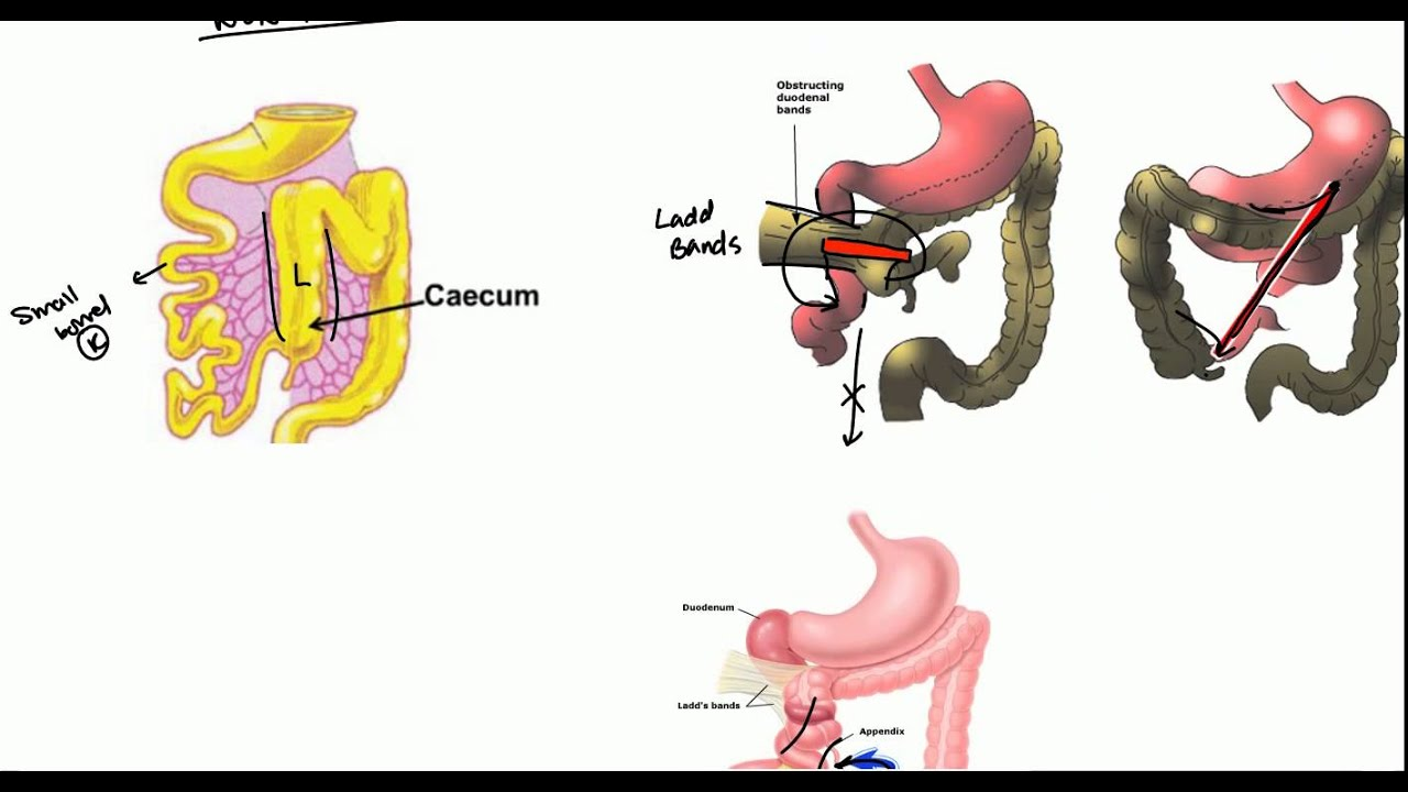 Gut Malrotation  Nonrotation And Volvulus For Usmle
