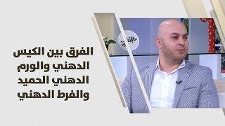 د. سعيد الدبس - الفرق بين الكيس الدهني والورم الدهني الحميد والفرط الدهني