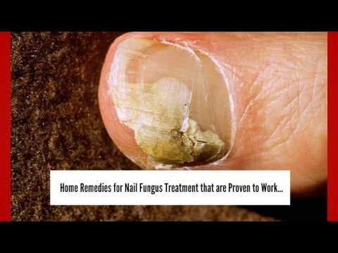 Nail Fungus Treatment: 3 Home Remedies for Nail Fungus