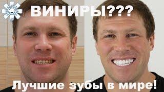 Виниры фото до и после. Лучшие зубы в мире! Видео отзыв о создании голливудской улыбки.