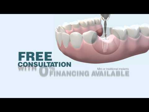 Buffalo, NY Dental Implants - Affordable General Dentistry