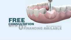 Buffalo, NY Dental Implants - Affordable General Dentistry