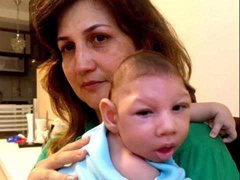 8f29319d7 الاطفال الذين يعانون من صغر الرأس، يسببها فيروس زيكا والرضع مع رؤساء صغيرة