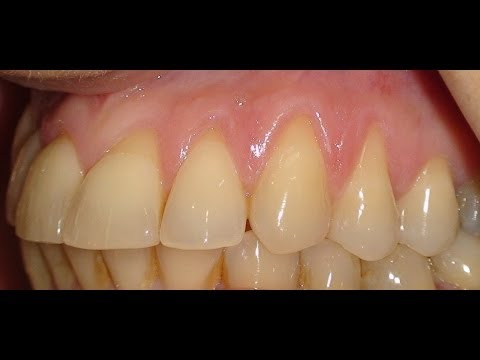 Gingival Recession Treatment Utilizing A Connective Tissue Graft