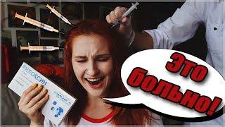 УКОЛЫ В ГОЛОВУ || Пробуем мезотерапию кожи головы в домашних условиях