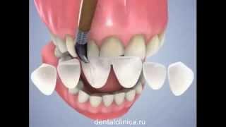 Лечение зубов красивая улыбка виниры коронки протезирование имплантация приятные цены(Клиника European Clinic of Aesthetic Dentistry in Budapest