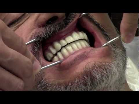 Patient Without Healthy Teeth for 25 Years Receives Full set of Teeth In a Day!