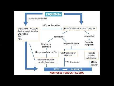 1-insuficiencia-renal-aguda