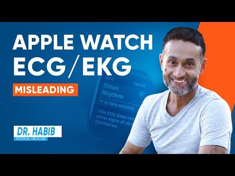 Apple Watch ECG/EKG is misleading