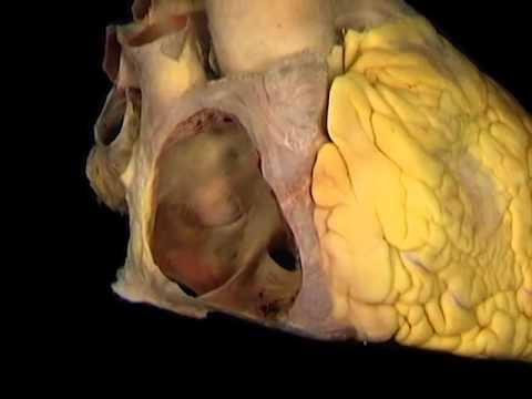 Acland\'s Video Atlas of Human Anatomy: Right Atrium - YouTube