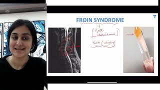 A-Z syndromes | Letter F | Dr. Zainab Vora screenshot 1