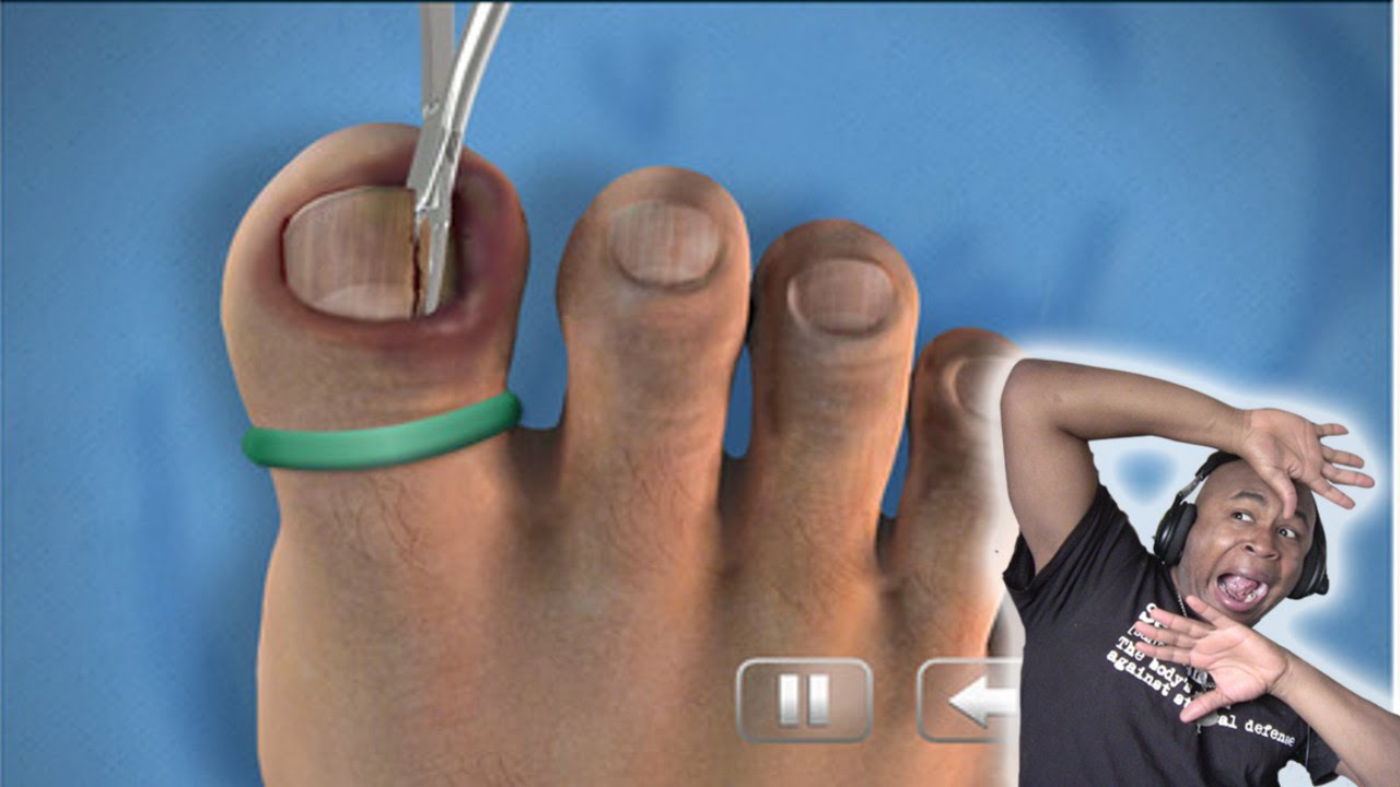 TOO DISGUSTING TO WATCH!! - Ingrown Toenail Surgery Simulator - YouTube