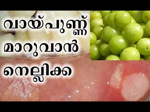 Natural Home Remedy For Mouth Ulcer