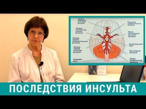 Последствия инсульта головного мозга, восстановление после инсульта