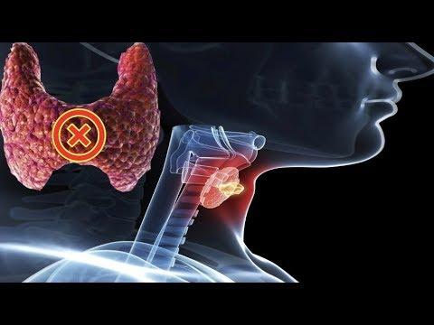 При заболевании щитовидной железы может болеть голова