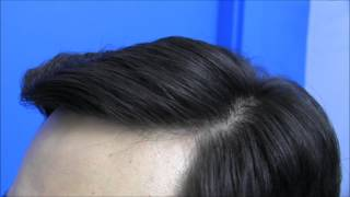 Hair Transplant Surgery Before and After from Hasson and Wong
