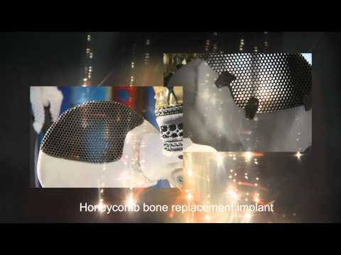 Titanium 3D Printing in Action - Electron Beam Melting (EBM)