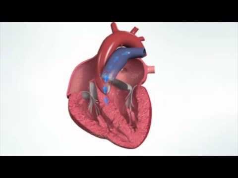 How normal heart function - YouTube