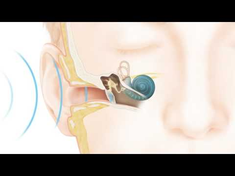 How Cochlear™ hearing solutions work: how natural hearing works