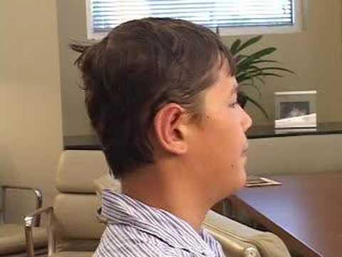 DALLAS OTOPLASTY COSMETIC EAR PINNING JOURNEY