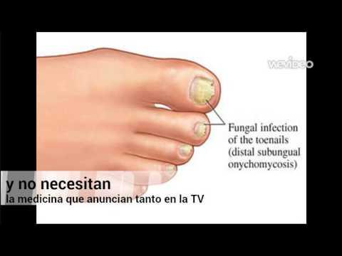 El tratamiento del hongo de las uñas por el láser en novosibirske