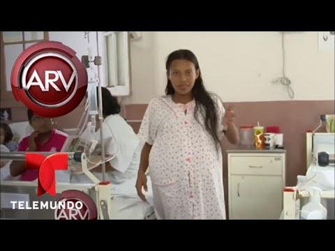 Extirpan tumor de 35 libras del abdomen de una joven | Al Rojo Vivo | Telemundo