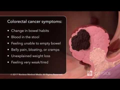 Schedule Your Colon Cancer Screening