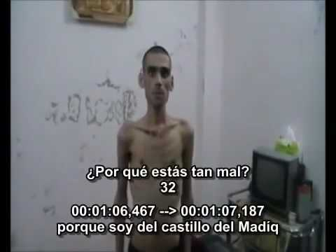 - #Syria - Archive: an example of what happens of torture and starving in Assad's prisons