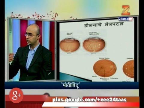 Hitguj | Dr Aditiya Kelkar | Ophthalmologist | Eye Surgeon | On Cataract | 20th March 2017