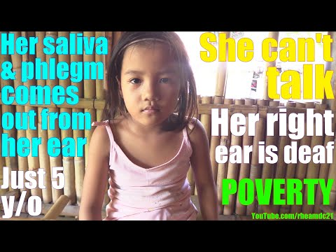 This Beautiful Poor Filipino Child Can't Hear and Talk. Filipinos Living in Poverty in Philippines