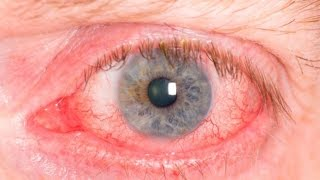 ☞ 10 Remedios caseros para los ojos irritados, rojos o con irritación ocular