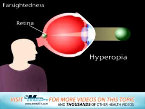 farsightedness