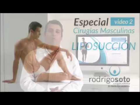 Liposucción masculina - Dr. Rodrigo Soto